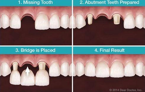 làm cầu răng sứ đến khi nào chân răng bị hư 1