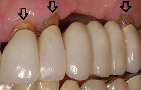 làm cầu răng sứ đến khi nào chân răng bị hư 2