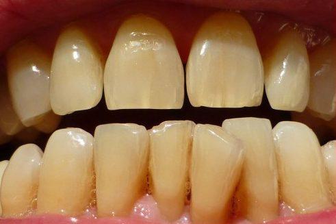 làm sao để răng không bị vàng 2