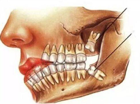 người già còn mọc răng được không 3