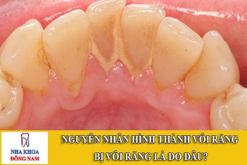 nguyên nhân hình thành vôi răng bị vôi răng là do đâu