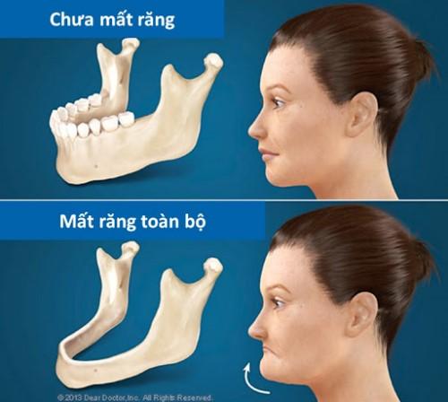 tiêu xương hàm gây lão hóa