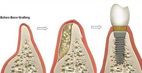 cấy ghép xương trồng răng implant