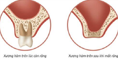 nhổ răng bao lâu thì sẽ bị tiêu xương 1