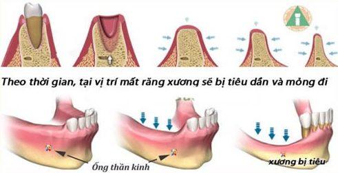 nhổ răng bao lâu thì sẽ bị tiêu xương 2