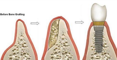 nhổ răng bao lâu thì sẽ bị tiêu xương 3