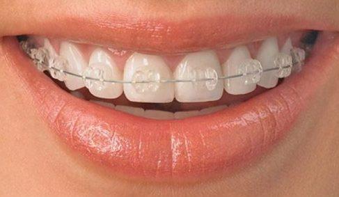niềng răng bằng công nghệ mới – hiện đại – hiệu quả cao 1