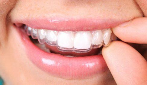 niềng răng bằng công nghệ mới – hiện đại – hiệu quả cao 2