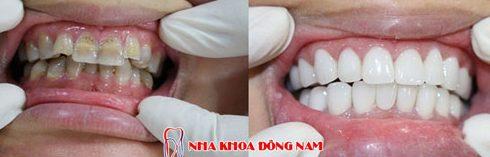 răng bị nhiễm kháng sinh tetracycline