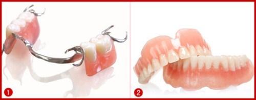 răng giả cho người già gồm những loại nào 1