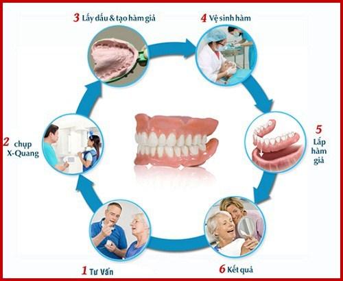 răng giả cho người già gồm những loại nào 2