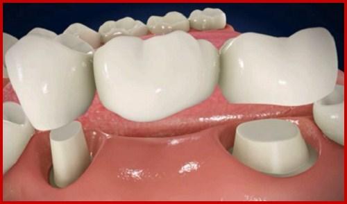 răng giả cho người già gồm những loại nào 4