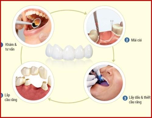 răng giả cho người già gồm những loại nào 5