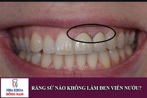 răng sứ nào không làm đen viền nướu