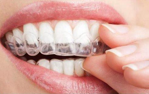 Răng sứ xuống màu có thể tẩy trắng không2