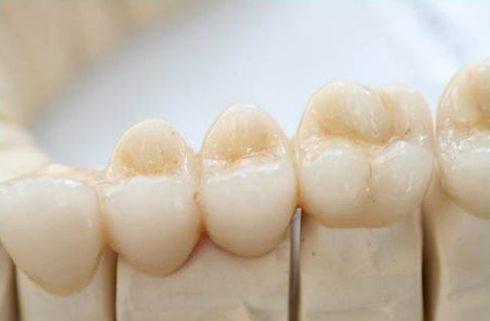 Răng sứ xuống màu có thể tẩy trắng không3