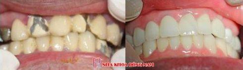 Răng sứ xuống màu có thể tẩy trắng không5