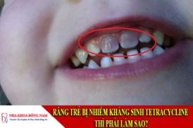 răng trẻ bị nhiễm kháng sinh tetracycline thì phải làm sao