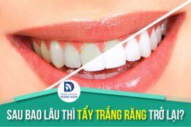 Sau bao lâu thì Tẩy Trắng Răng trở lại
