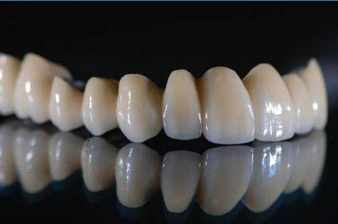 sau khi bọc răng sứ có bị sâu răng không 1