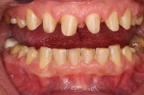 sau khi bọc răng sứ có bị sâu răng không