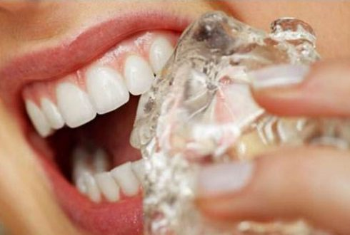 sau khi bọc răng sứ có bị sâu răng không 3