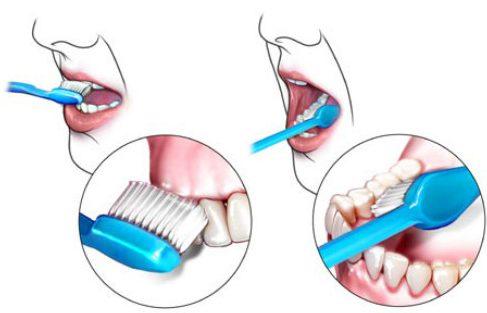 sau khi cạo vôi răng có cần kiêng cữ gì không 5
