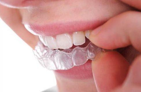 sau sinh bao lâu có thể đi tẩy trắng răng 4