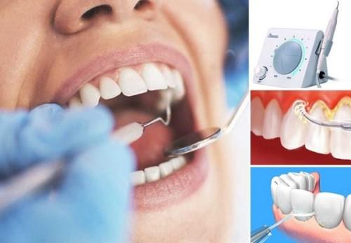 cạo vôi răng cho phụ nữ sau sinh