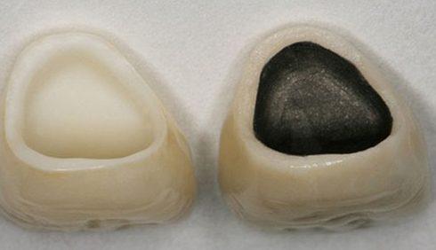 so sánh răng sứ kim loại và răng toàn sứ 1