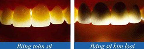 so sánh răng sứ kim loại và răng toàn sứ 2