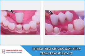 sự khác nhau giữa bọc răng sứ và trồng răng sứ bắt cầu