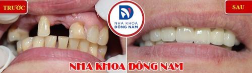 sự khác nhau giữa bọc răng sứ và trồng răng sứ bắt cầu 2