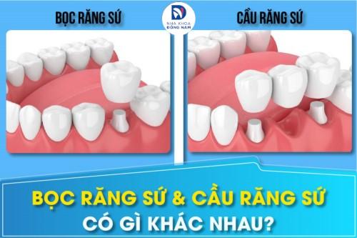 sự khác nhau giữa bọc răng sứ và trồng răng sứ bắt cầu 6