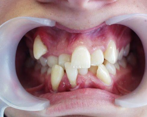 tại sao vệ sinh miệng kỹ lưỡng vẫn bị sâu răng 3