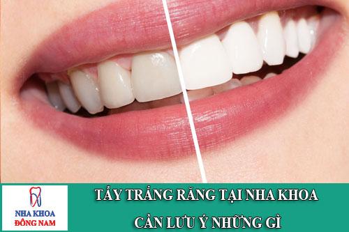 tẩy trắng răng tại nha khoa cần lưu ý những gì