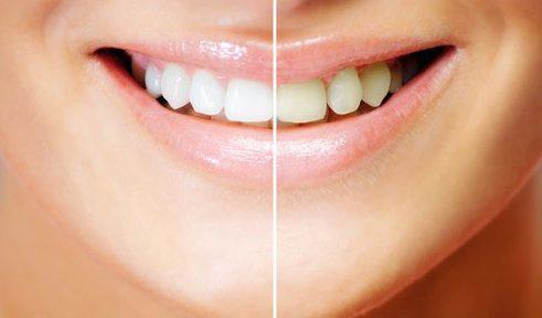 thuốc tẩy trắng răng tại nha khoa giá bao nhiêu 1