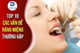 top 10 các vấn đề răng miệng thường gặp