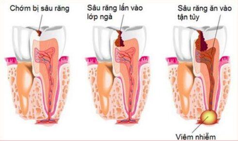 top 10 các vấn đề răng miệng thường gặp 2