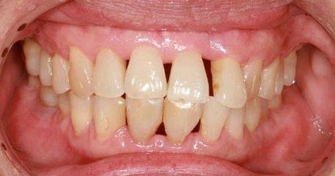 top 10 các vấn đề răng miệng thường gặp 5