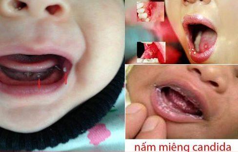 top 10 các vấn đề răng miệng thường gặp 7