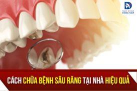 Cách Chữa Bệnh Sâu Răng Tại Nhà Hiệu Quả