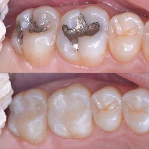 trám răng amalgam và composite