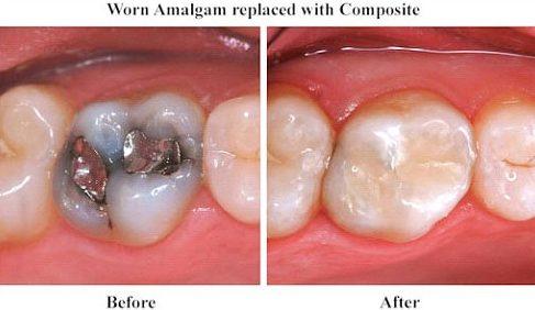 trám răng sử dụng được bao lâu 2