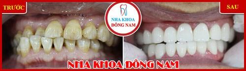 Phương pháp vệ sinh răng miệng đúng cách 7
