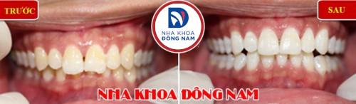 vì sao răng bị đóng vôi và cách điều trị 3