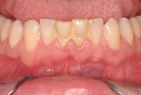 vì sao răng bị đóng vôi và cách điều trị 2