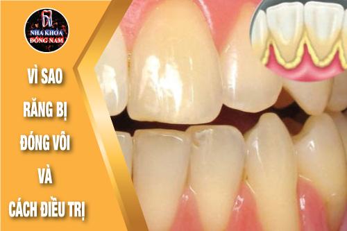 vì sao răng bị đóng vôi và cách điều trị