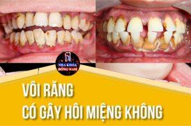vôi răng có gây hôi miệng không