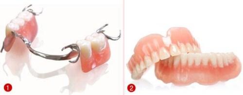 Nên làm răng giả tháo lắp hay cố định bằng Implant-1